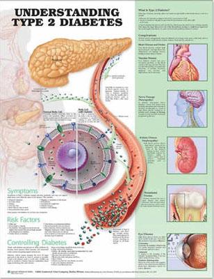 Type-2-Diabetes-medical-anatomical-chart